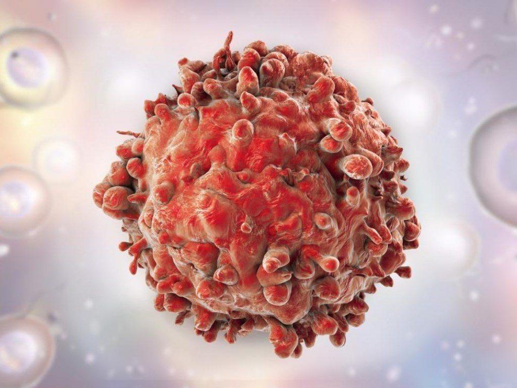 Ученым удалось вылечить рак груди в терминальной стадии