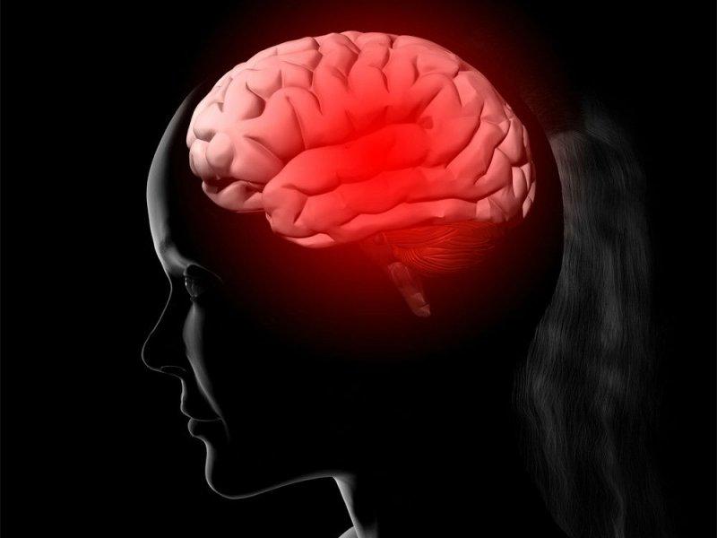 Эксперты назвали пять возможных симптомов рака мозга
