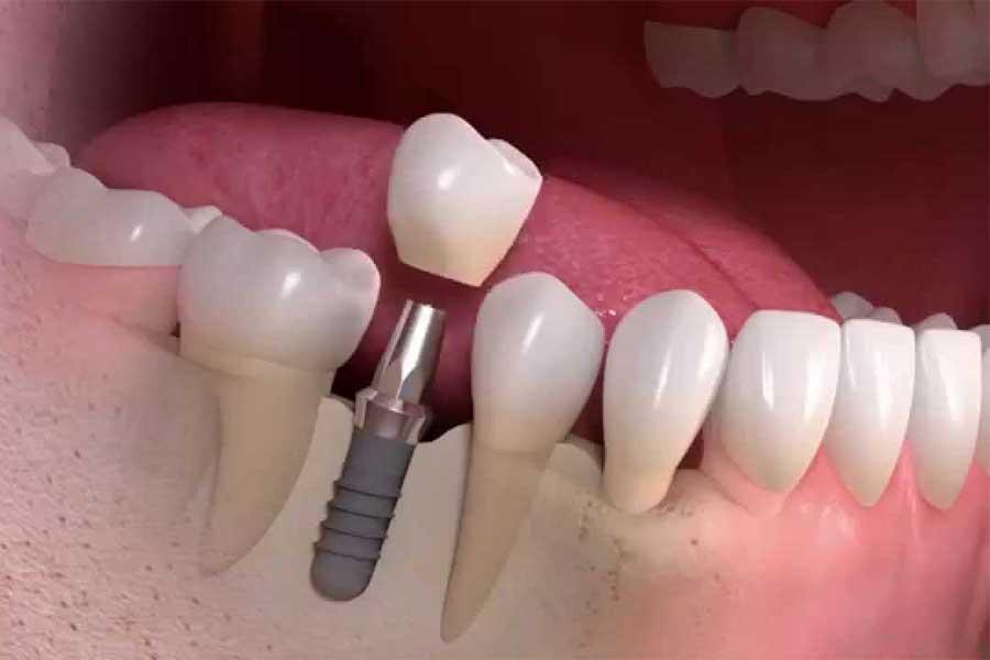 Протезирование зубов. Косметическая стоматология — это идеальная улыбка, которая поможет Вам почувствовать себя увереннее!