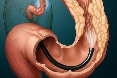 5 признаков того, что дискомфорт в заднем проходе может быть раком прямой кишки