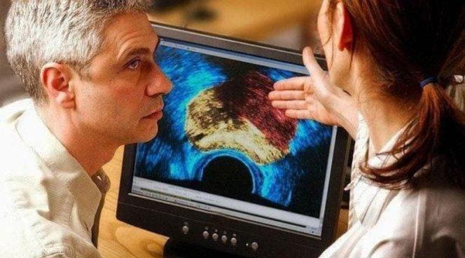 Бактерии с океанского дна успешно лечат мужской рак