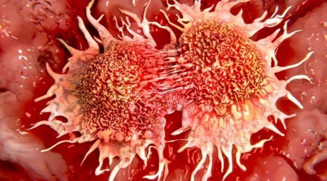 Врачи вылечат рак, заставив его клетки делиться быстрее