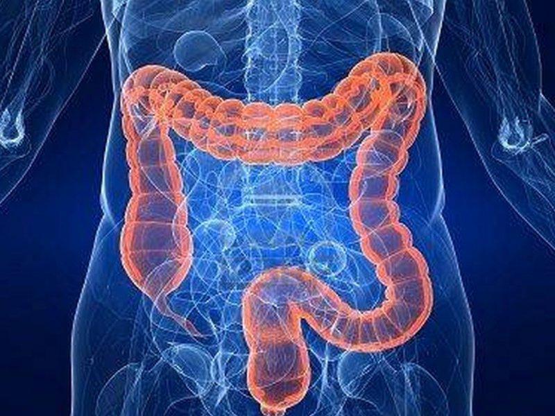 Четыре ведущие причины рака кишечника