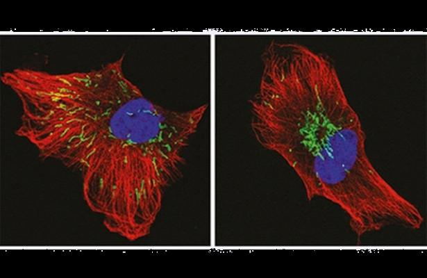 Найден новый способ борьбы с неизлечимым раком