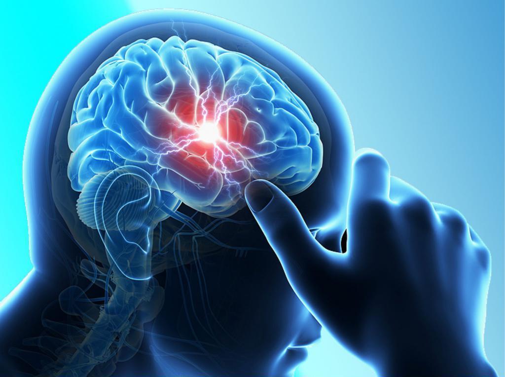 Опухоль головного мозга: 13 тревожных признаков и симптомов