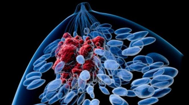Ученые нашли 23 гена, отвечающие за метастазы рака