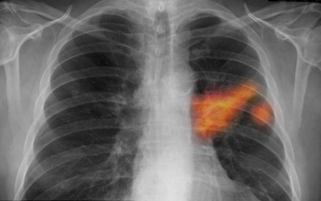 Как распознать рак легких на ранней стадии
