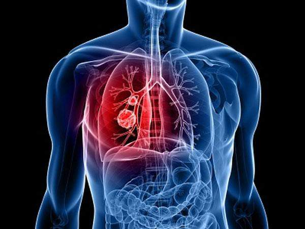 Онкологи назвали основные признаки рака легких
