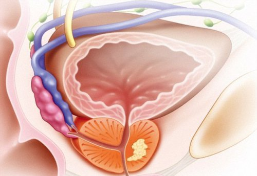 Рак простаты будут диагностировать по запаху