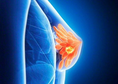 Проблемы с щитовидкой у женщин провоцируют рак груди