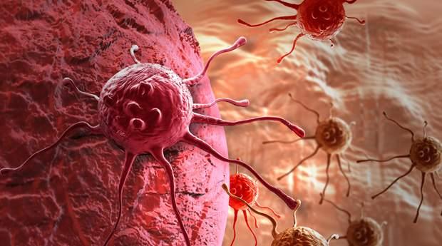 Ученые рассказали, как связаны ожирение и рак