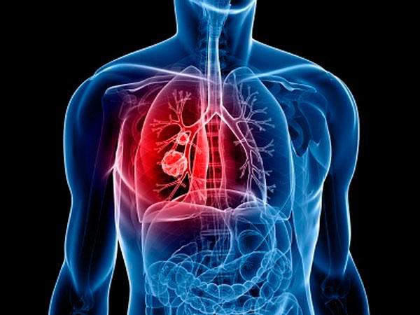 Чтобы вылечить рак, иногда нужно открыть опухоли кислород