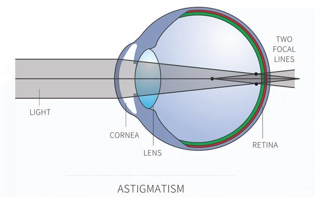 Скрытые причины плохого зрения