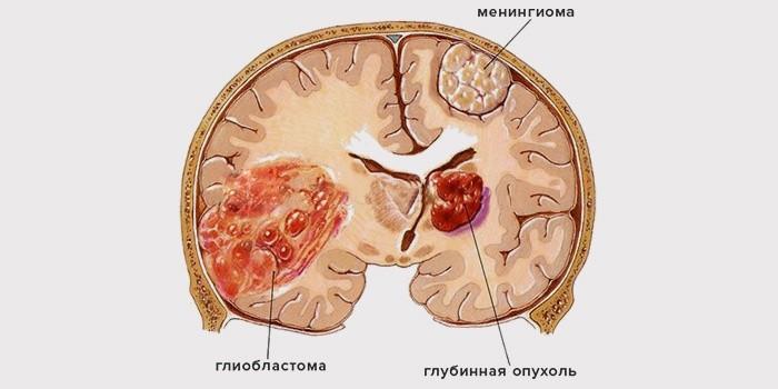 Глиобластома головного мозга. Реальность