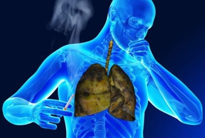 Четыре простых правила помогут снизить риск рака легких