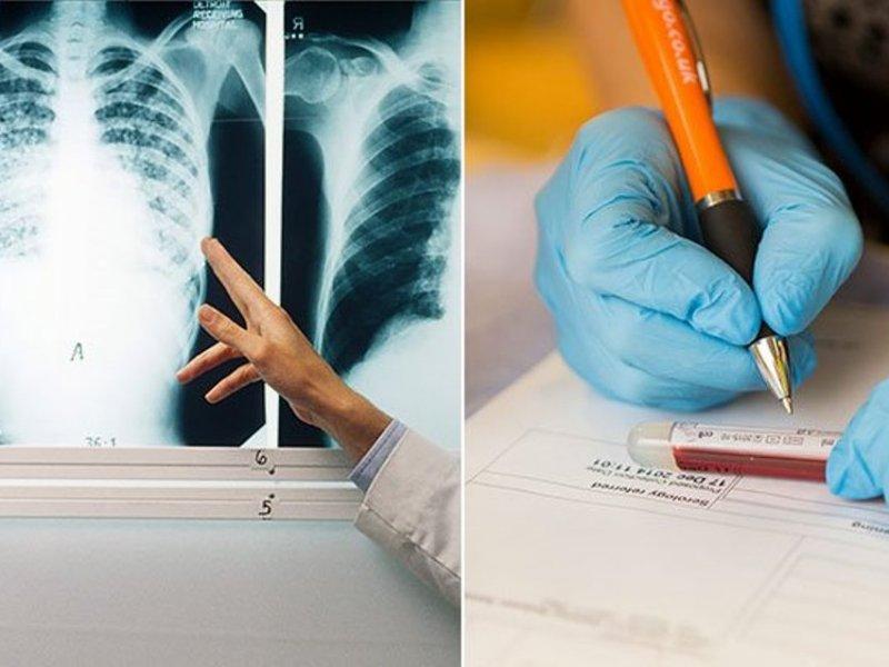 Пациентов с раком легких лечат от туберкулеза