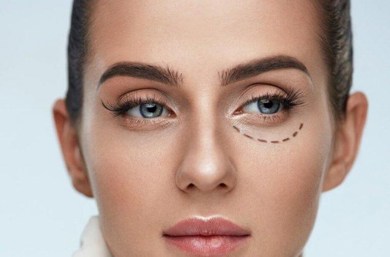 Блефаропластика: популярная процедура коррекции внешности для мужчин и женщин