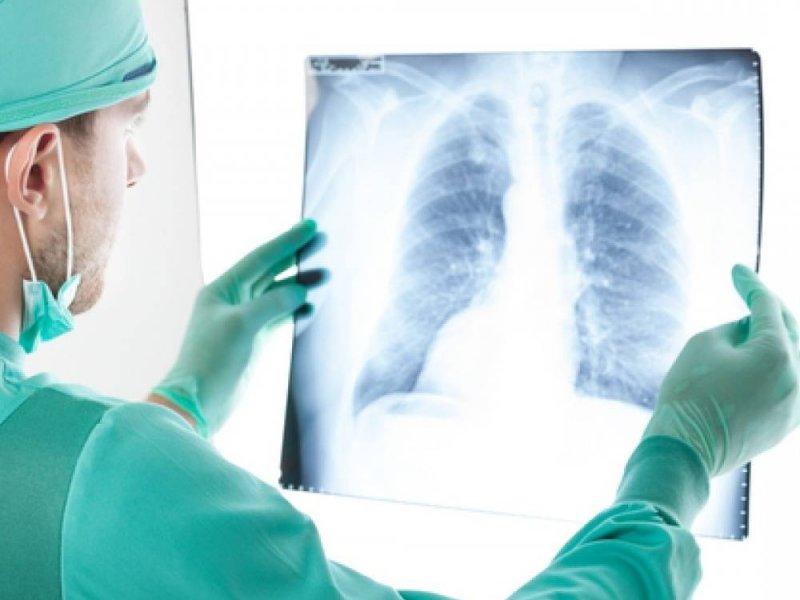 Найдено вещество для выявления раковых опухолей на ранней стадии