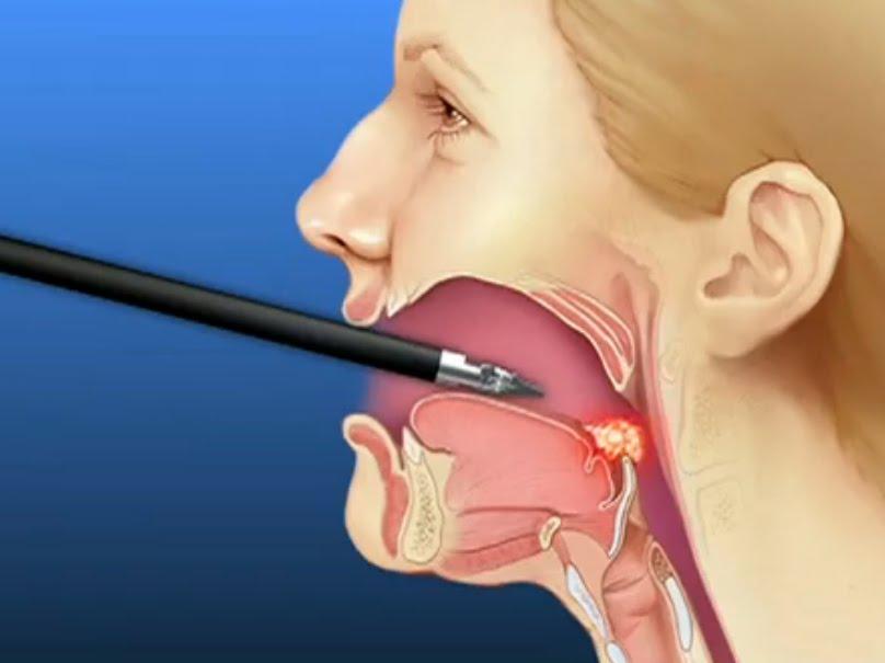 Рак горла — первые симптомы
