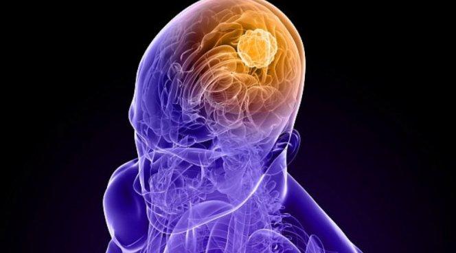Новая генная терапия лечит смертельный рак мозга