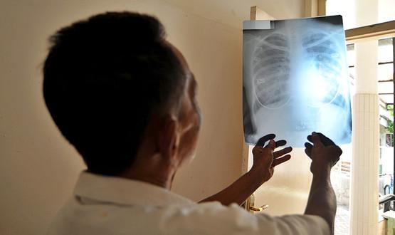 Тучные люди рискуют заболеть раком из-за рентгена