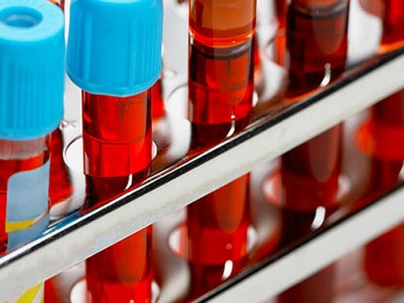 Разработан новый метод выявления рака крови
