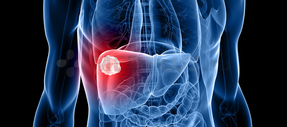Причины возникновения рака. Диагностика, лечение