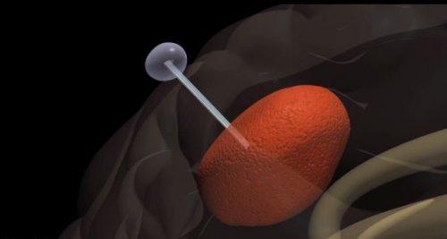Новая методика: неоперабельные опухоли мозга будут ловить на удочку
