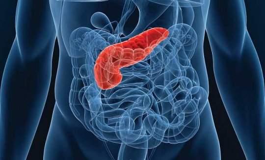 Тревожные симптомы рака поджелудочной железы