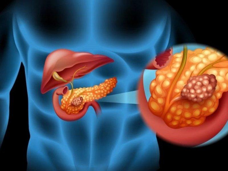 Рак поджелудочной железы найдут по мазку изо рта