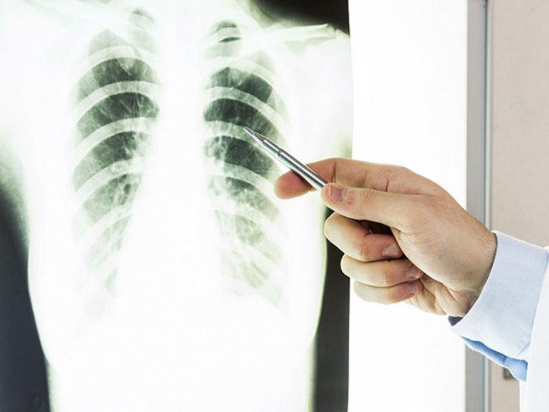 Биосенсоры найдут рак легких на самой ранней стадии