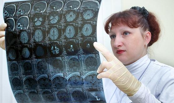 Россияне стали чаще болеть раком мозга