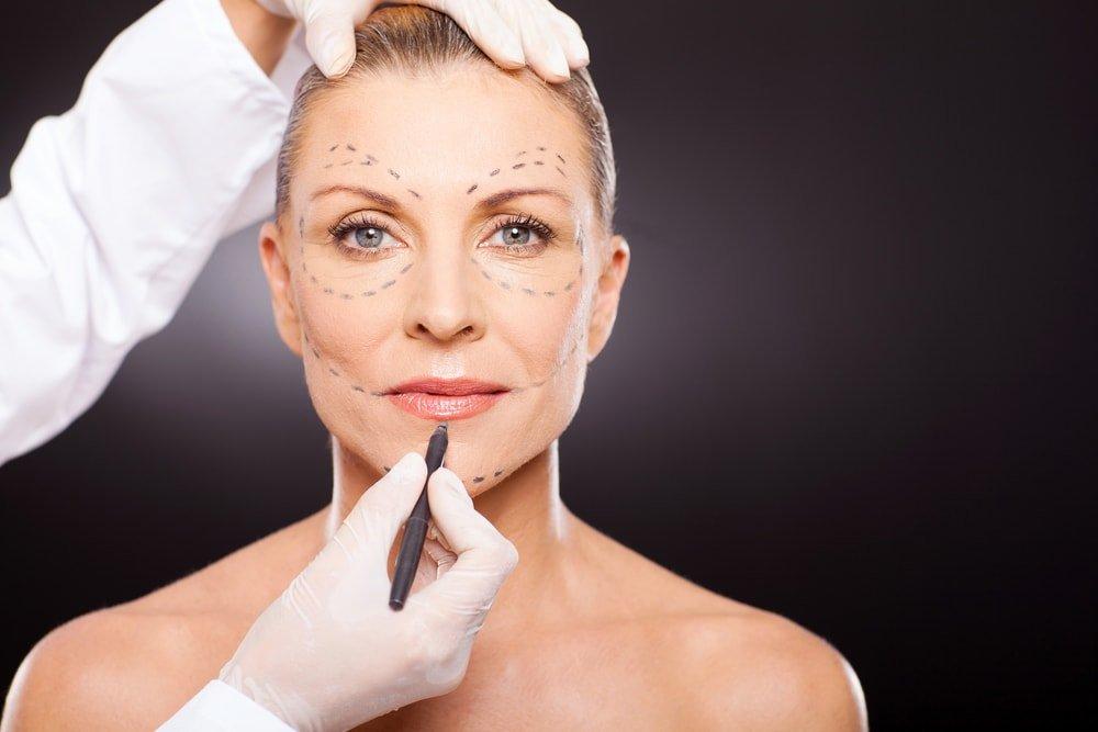 Эндоскопическая подтяжка лица: как проводится, показания и противопоказания