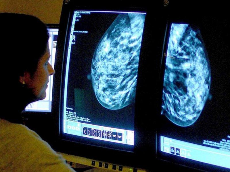 В США одобрили лекарство от тяжелого рака груди