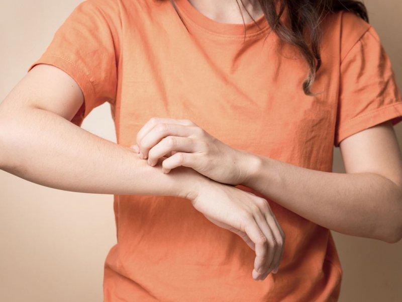 Кожная сыпь может быть симптомом рака легких