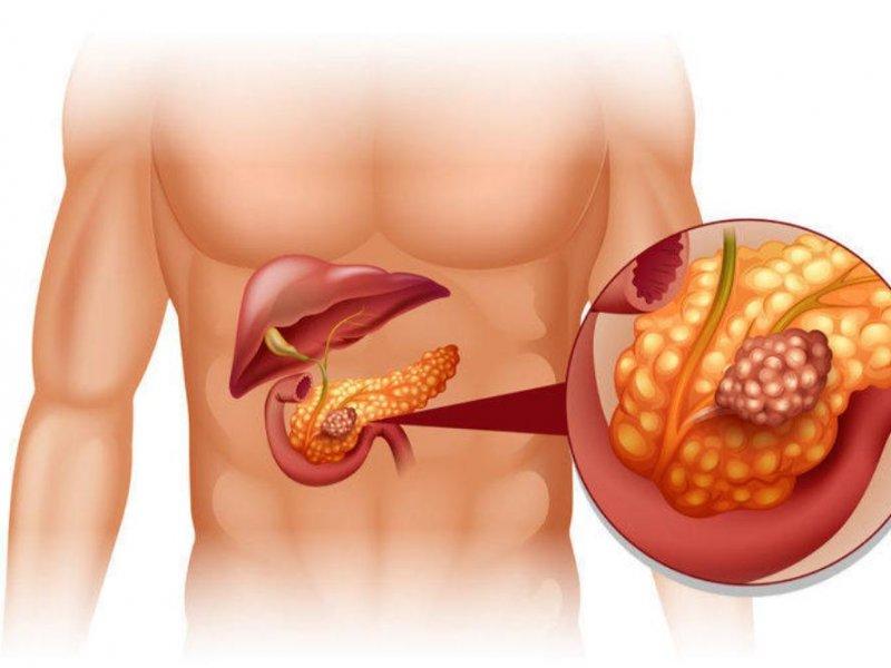 Ферменты в крови помогут с прогнозом при раке поджелудочной железы