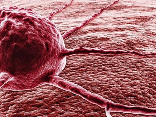 Названы ранние симптомы рака мозга