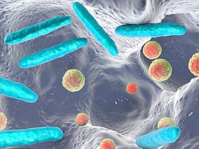 С раком кишечника связали 30 разных бактерий