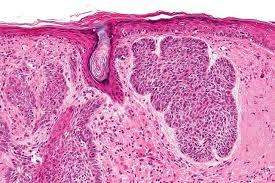 Базалиома: почему возникает и как лечится раковое заболевание кожи