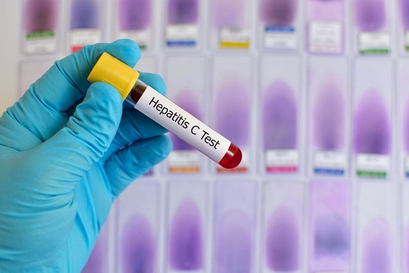 Гепатит С: Диагностика и лечение