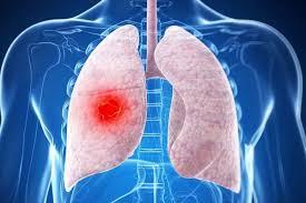 Названы три главных способа избежать рака легких