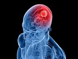 5 симптомов опухоли мозга. Осведомлен, значит здоров