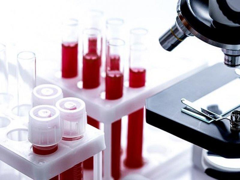 Метастазы рака предскажут по анализу крови