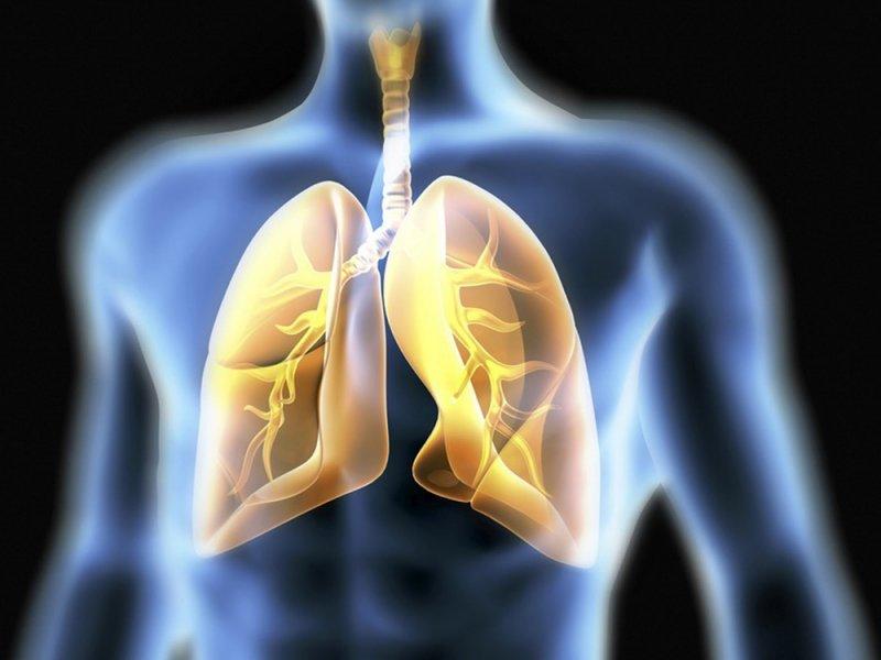 Маленькие зрачки могут быть возможным симптомом рака легких