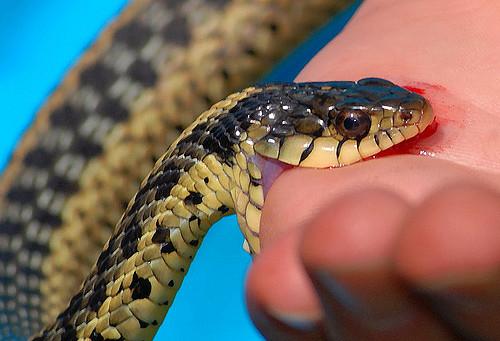Оказание первой помощи при укусах змеи