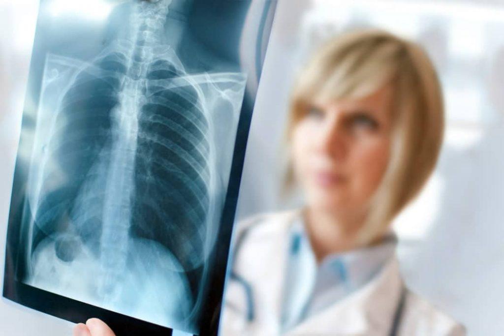 Туберкулез или рак: как определить два коварных заболевания?