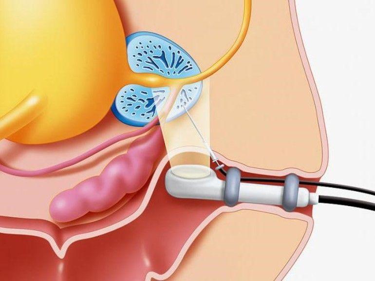 Биопсия предстательной железы: особенности процедуры, что показывает и как выполняется?