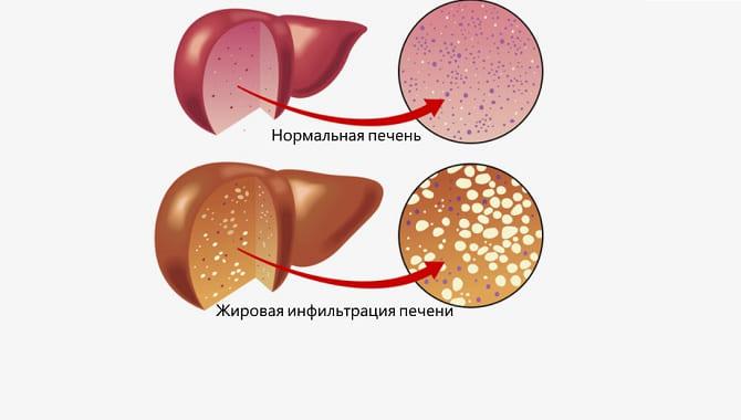 Стеатогепатоз: причины, симптоматика, особенности лечения заболевания