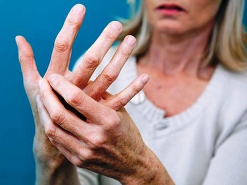 Признак рака легких: при развитии опухоли меняется состояние пальцев и ногтей