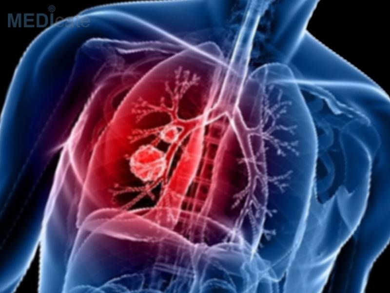 Метастазы при раке легких